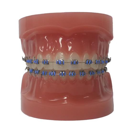 Customize Your Colors - North Portland Orthodontics ...